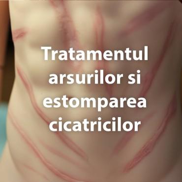 Tratamentul arsurilor si estomparea cicatricilor