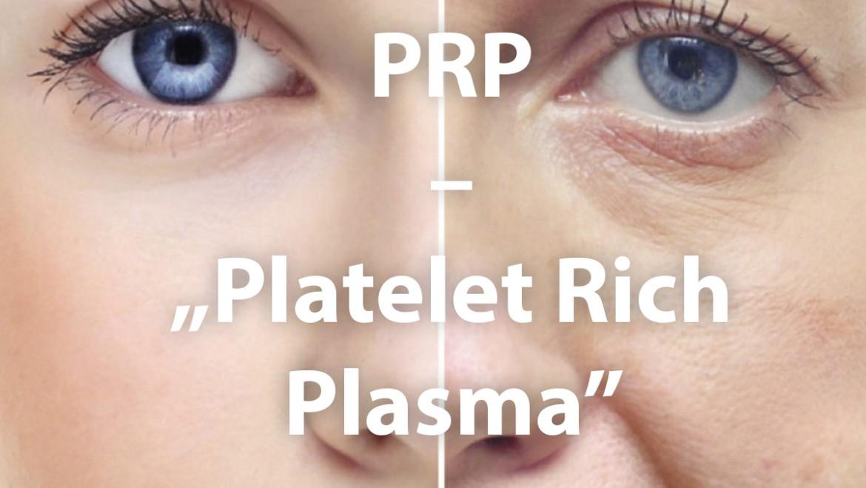 """PRP – """"Platelet Rich Plasma"""""""