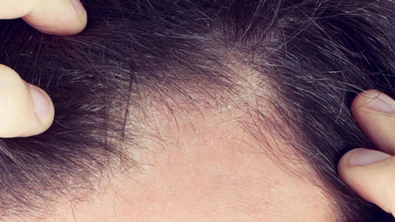 Tratament alopecie