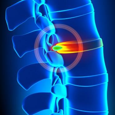 Tratamentul herniei de disc