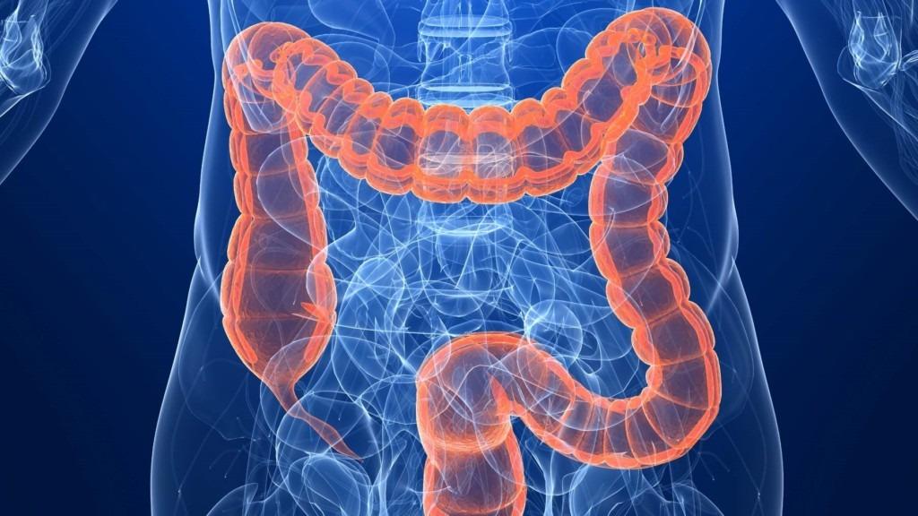 curatare colon timisoara